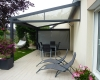 Pose de pergola en Vendée par Espace Confort 2000